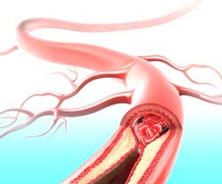 peripheral vascular disease occlusion or narrowing by atherosclerotic plaques of the arteries coronary artery disease