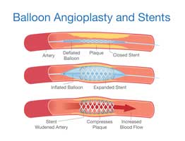 peripheral vascular disease Balloon angioplasty and stenting peripheral arterial disease PAD