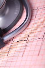 Heart-Arrhythmias
