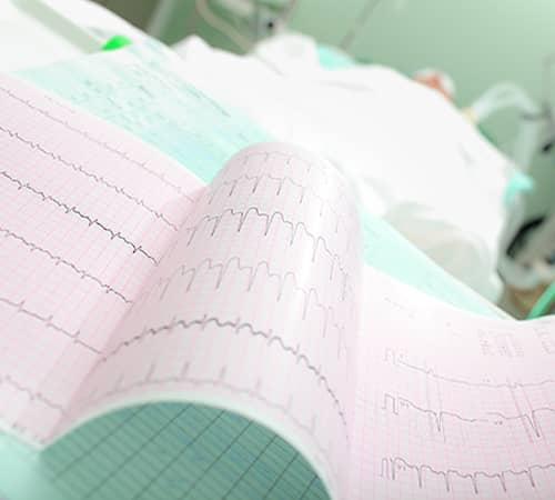 Heart-Rhythms-Arrhythmias